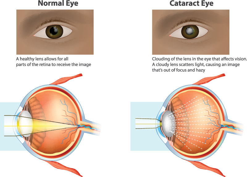 Illustration of how cataracts affect the eye