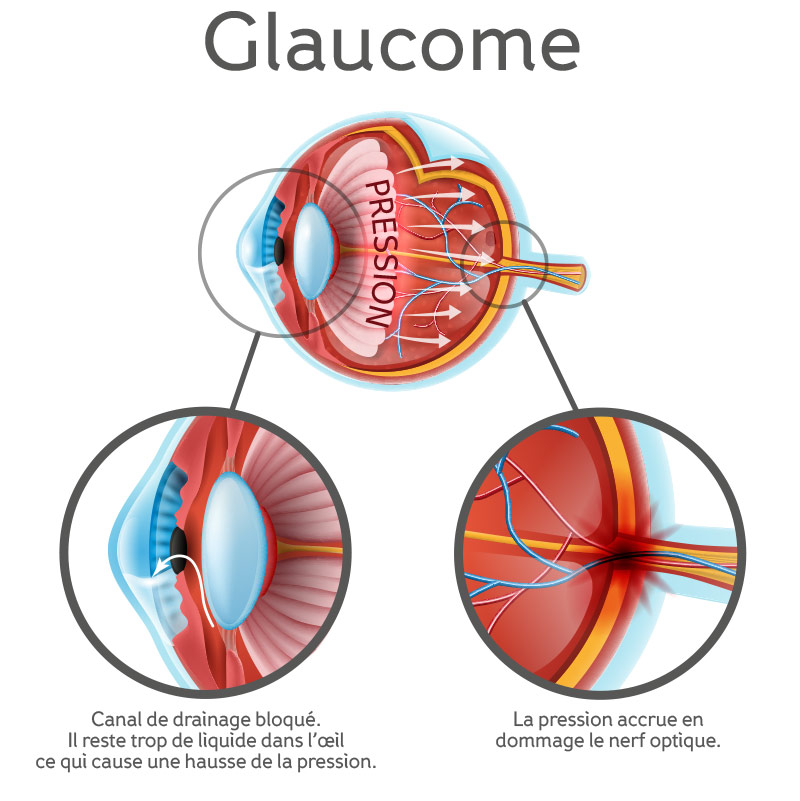 Anatomical-structure-of-the-eye,-showing-glaucoma